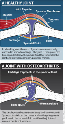 Healthy joint and a joint with osteoarthritis