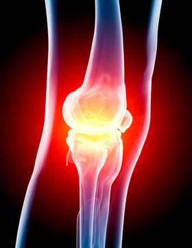 Limbrel Com Osteoarthritis Knee