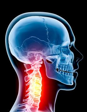 Limbrel Com Osteoarthritis Neck